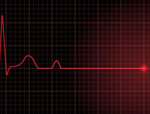 Migotanie komór i częstoskurcz komorowy tętna – rytmy defibrylacyjne