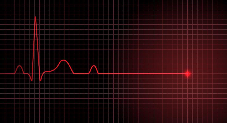 Czym są rytmy defibrylacyjne